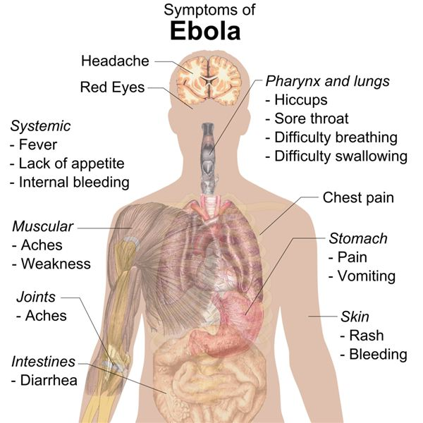 how the ebola virus affects the human body: learn the symptoms of, Muscles