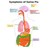 PD Diagram of swine flu symptoms - image released into the public domain by the Centers for Disease Control and Prevention