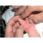 800px-New born boy showing complete complex syndactyly with two fingers right hand