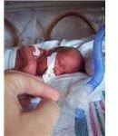 Premature Infant (26 weeks 6 days gestation)