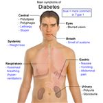 Main symptoms of diabetes