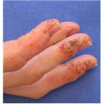 Dyshidrotic Dermatitis On Hands Late Stage