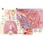 Causes, Symptoms, Diagnosis and Treatment of Non Small Cell Lung Cancer