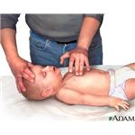 CPR - chest compressions
