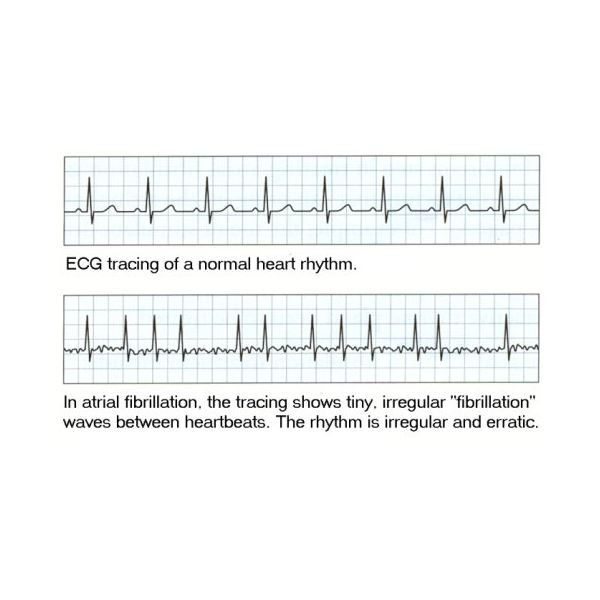 How Should Chest Pain Be Evaluated In An Emergency Room