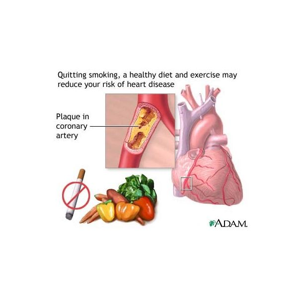 What Is Coronary Artery Disease—and Can It Be Prevented?