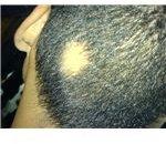 800px-Allopecia areata