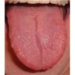 Human tongue - home to millions of microbes - image released under GNU Free Documentation License