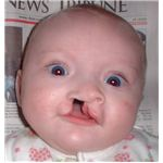 Child with cleft palate at 5 months - image released into the public domain