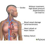 Hypertension affects all the major body systems