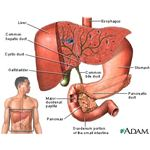 treatment of low albumin in liver disease