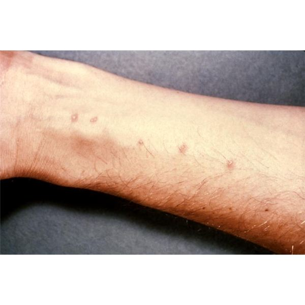 What are some ways to stop compulsive scab picking?