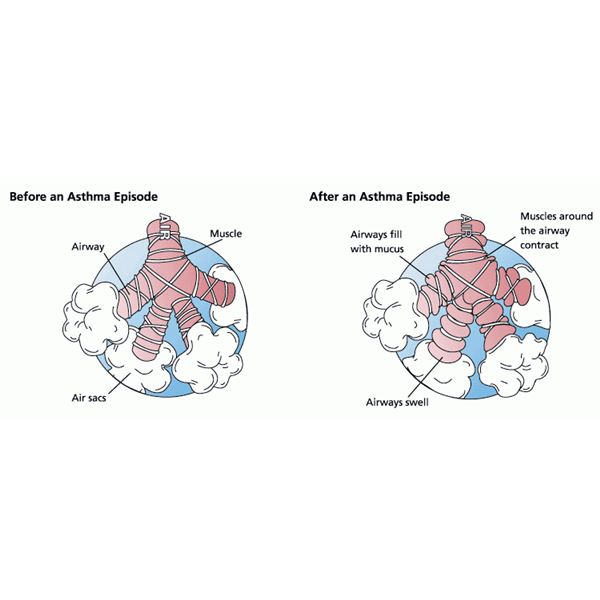 an understanding of the respiratory disease asthma We have a unique perspective and a unique understanding about women's respiratory  of asthma than men in north  to women with respiratory disease and have.