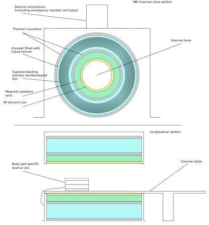 what does an mri machine look like