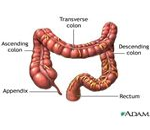 Preventing Colon Cancer (image in the public domain)