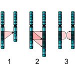 Single Chromosome Mutations: deletion, duplication and inversion have all been implicated in autism; graphic by Richard Wheeler, released under GNU Free Documentation License