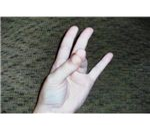 ASL Seventeen Position 2