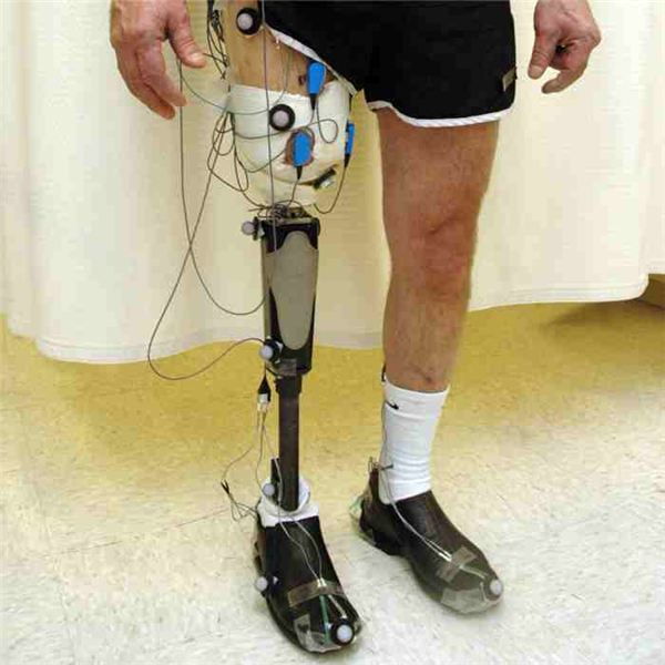 Advanced Neuroprosthetic Control