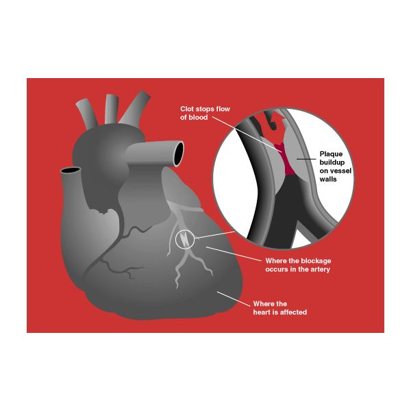 An Overview of Diabetes Heart Attack Signs and Symptoms