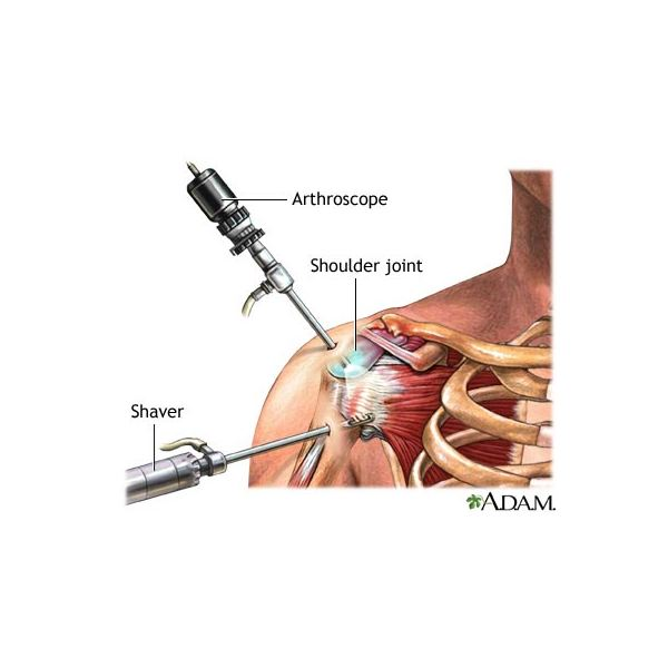 Learn about Shoulder Surgery for Arthritis