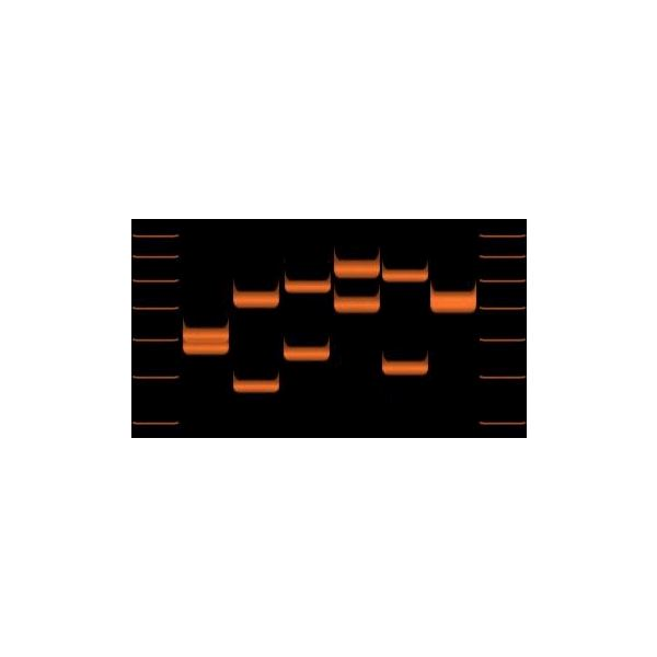 Variations of VNTR allele lengths in 6 individuals - image released under Creative Commons Attribution ShareAlike 3.0 License
