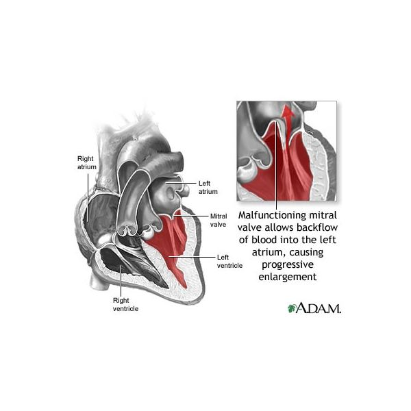 Learn about Mitral Valve Prolapse Treatment