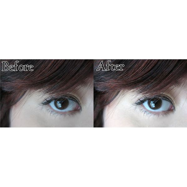 Before and After White Eye Correction