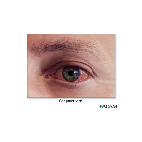 Learn about Allergic Conjunctivitis along with Its Causes and Treatments
