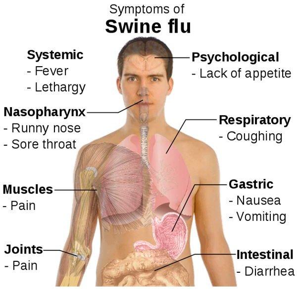 Symptoms of swine flu