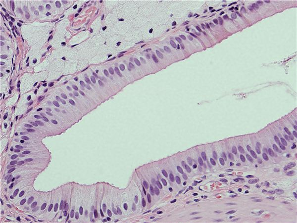Inflammatory Cellular Response