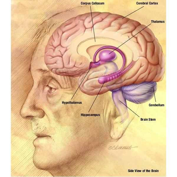 alzheimer s and diabetes what is type 3 diabetes