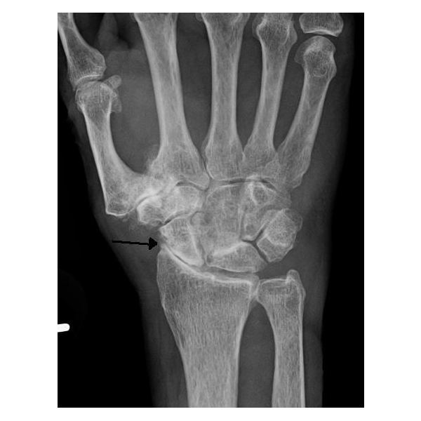 Severe osteoarthritis and osteopenia of the carpal joint and 1st carpometacarpal joint.