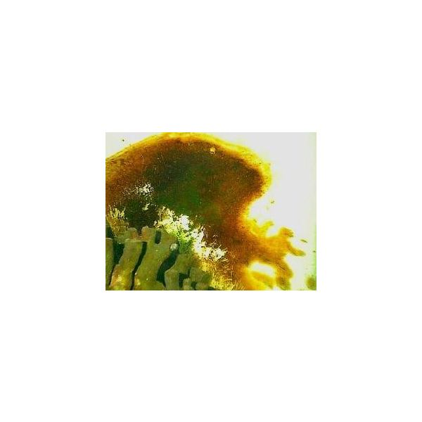 golden brown - this is not algae