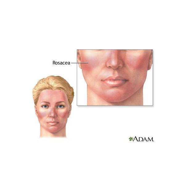 Rosacea (image in the public domain)