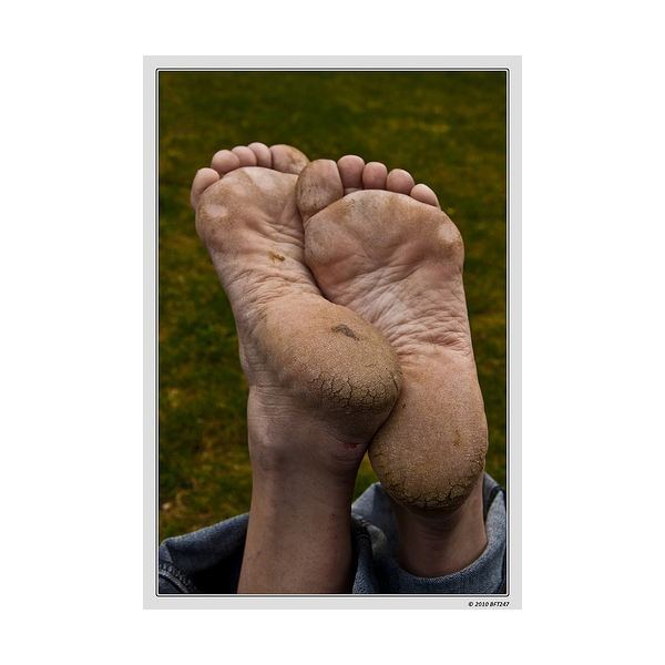 Natural Treatment for Cracked Heels