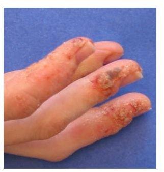 Dyshidrotic Dermatitis On Hands Late Stage