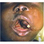 Facial Burkitt's lymphoma in 7-year-old Nigerian boy, showing disruption of teeth and partial obstruction of airway - image released under Creative Commons License by Mike Blyth