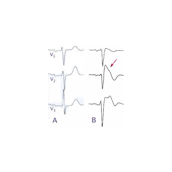 (A) Normal electrocardiogram pattern in the precordial leads V1-3, (B) changes in Brugada syndrome (type B) - image author J Heuser - GNU Free Documentation License