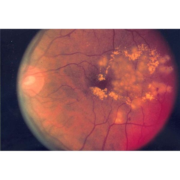 showing focal laser surgery for diabetic retinopathy