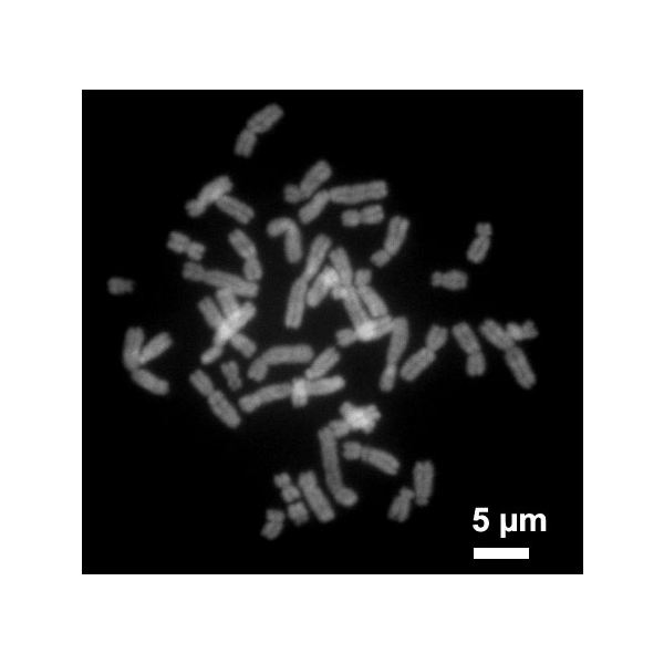 Human Chromosomes during Metaphase - image released into public domain by Steffen Dietzel