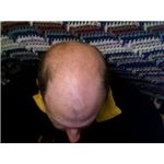 Man with male pattern baldness - image released under Creative Commons Attribution ShareAlike 3.0 License