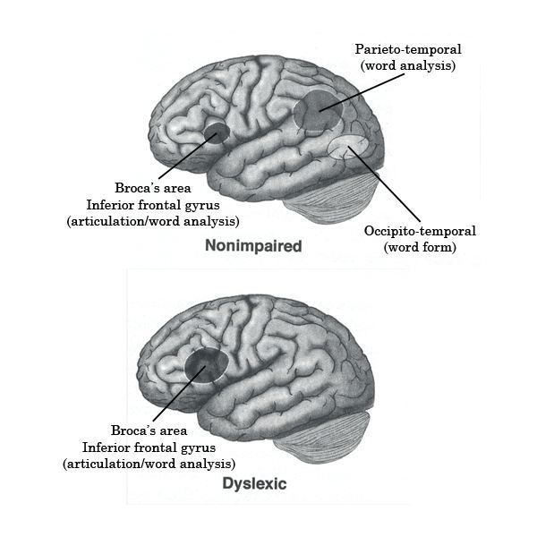A Nonimpaired Brain Compared to One with Dyslexia