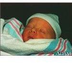 Care of Newborn with Jaundice (image in the public domain)