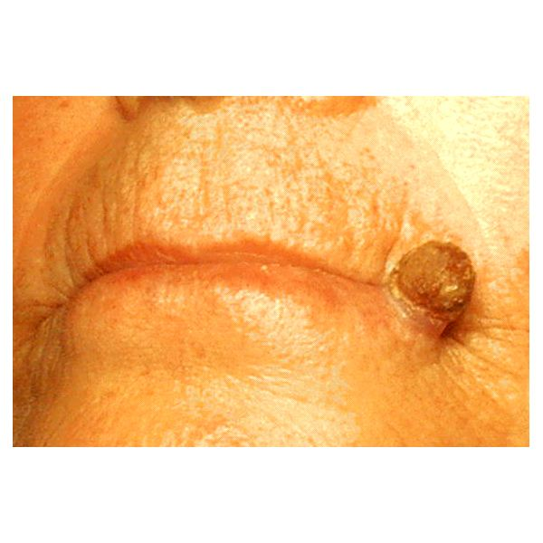Cryotherapy for Actinic Keratosis
