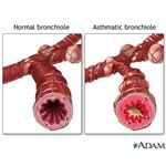Normal & Asthmatic bronchiole