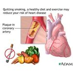 Preventing Heart Disease (image in the public domain)