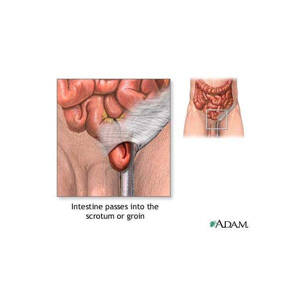 Inguinal Hernia Surgery: Types and Complications