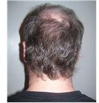 Back of man's head