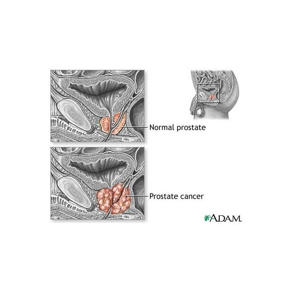 Learn about Hormone Therapy for Prostate Cancer