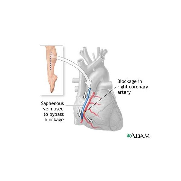 Info on Quadruple Bypass Surgery Survival Rate